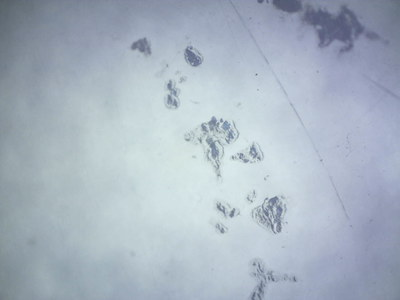 Damage to the polypropylene surface under a microscope, 1.